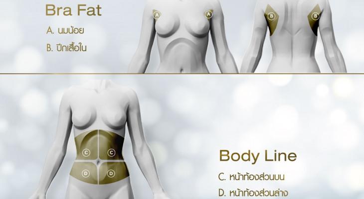 กำจัดไขมันบริเวณรอบเสื้อชั้นใน และตกแต่งแนวกล้ามเนื้อหน้าท้อง